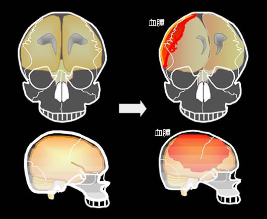 急性硬膜下血腫